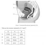 The diagram below shows the female reproductive system. What are the structure indicated by X, Y and Z? (See graph for diagram and possible answers).
